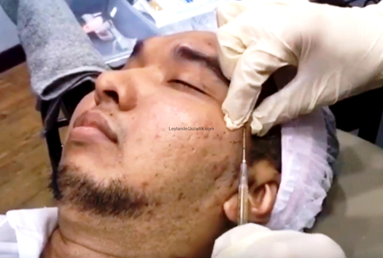 prp tedavisi, prp tedavisi diz için, prp tedavisi saç, prp tedavisi yorumlar, prp tedavisi nedir nasıl yapılır, prp tedavisi fiyatları 2017, prp tedavisi yaptıranlar, prp tedavisi ekşi, prp tedavisi kadınlar kulübü, prp tedavisi ortopedi, prp tedavisi leylande güzellik salonu, prp tedavisi leylande güzellik salonu maltepe, prp tedavisi leylande güzellik maltepe, prp tedavisi maltepe, prp tedavisi fiyatları maltepe, prp tedavisi fiyatları maltepe leylande, prp tedavisi fiyatları maltepe leyla demirci,